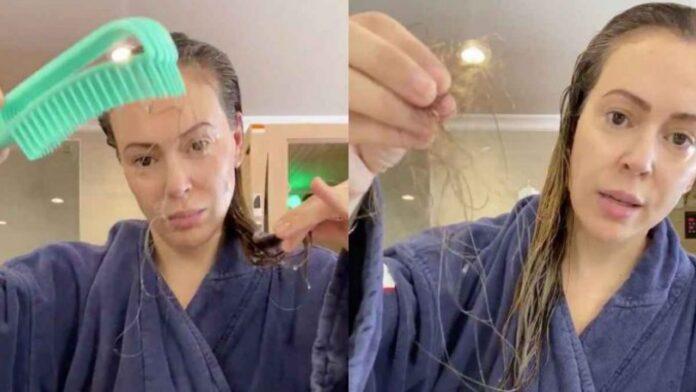 Alyssa Milano pierde el cabello - NDV