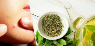 té verde tratamiento del acné