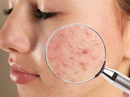 eliminar las marcas del acné