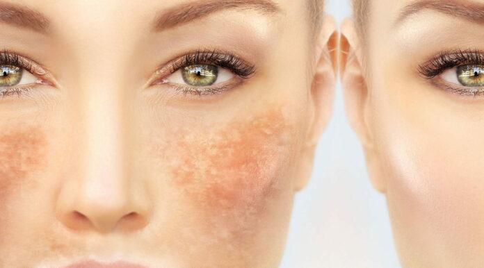 Tratamientos caseros para eliminar el paño de la cara